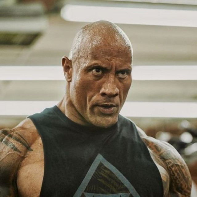 Dwayne Johnson showed his injury